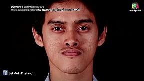 LET ME IN THAILAND | EP.8 ชายหนุ่มผู้มีใบหน้าผิดรูป | 5 มี.ค. 59