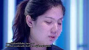 LET ME IN THAILAND SEASON2   EP.3 สาวเสียโฉมเพราะอุบัติเหตุ   19 พ.ย. 59 [2\/4]