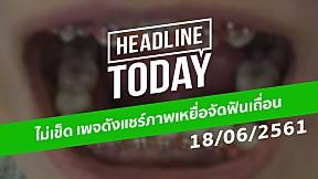 HEADLINE TODAY - ไม่เข็ด เพจดังแชร์ภาพเหยื่อจัดฟันเถื่อน