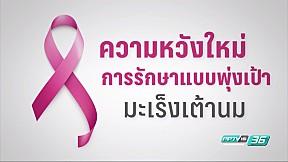 ความหวังใหม่ของการรักษามะเร็งเต้านมแบบพุ่งเป้า