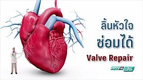 มีหัวใจไว้ใช้ยาวๆ กับการรักษาโรคลิ้นหัวใจแบบ \