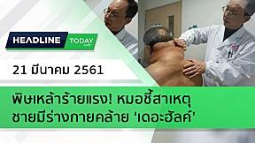 HEADLINE TODAY - พิษเหล้าร้ายแรง! หมอชี้สาเหตุชายมีร่างกายคล้าย 'เดอะฮัลค์'